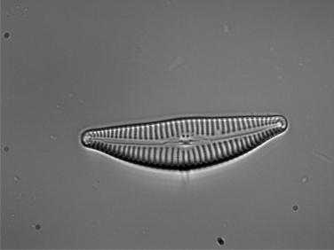 Diatomea Encyonella halada en Riaño.
